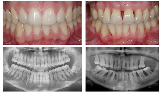 Courtesy of http://www.moderndentistry.com.au/periodontal_disease.php