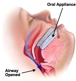 sleep-apnea-oral-device