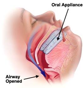 sleep-apnea-oral-device